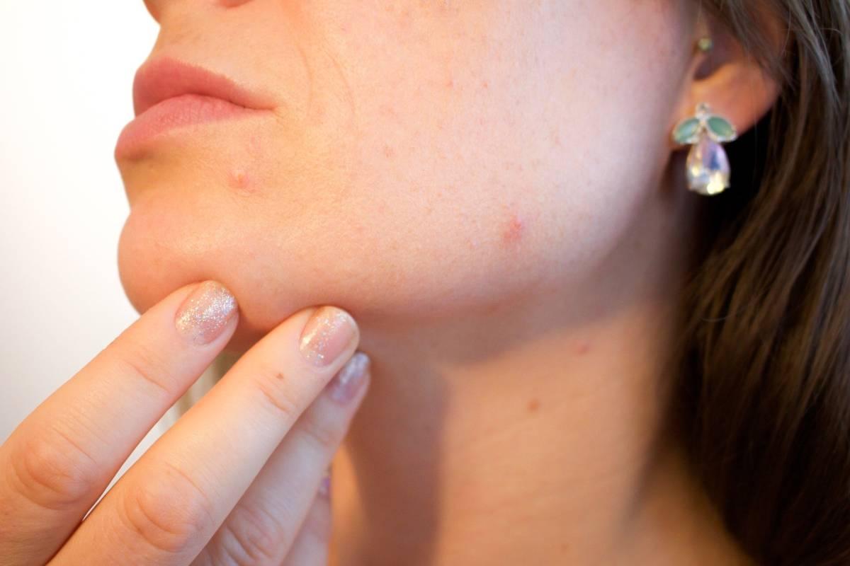 Ce cauzează acneea din diferite părţi ale feţei?