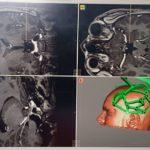SUUB București: operații de implantare intracerebrală de electrozi pentru delimitarea și ablația focarului epileptic