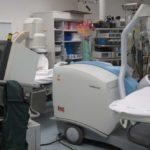 Tratamentul calculilor renali prin litotriție extracorporeală
